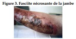 Fasciite Nécrosante de la jambe